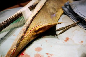 Surgery of torn Pelican pouch