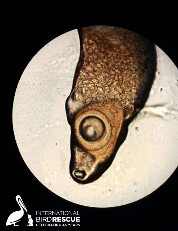 Photo of Microscope view of avian eye fluke